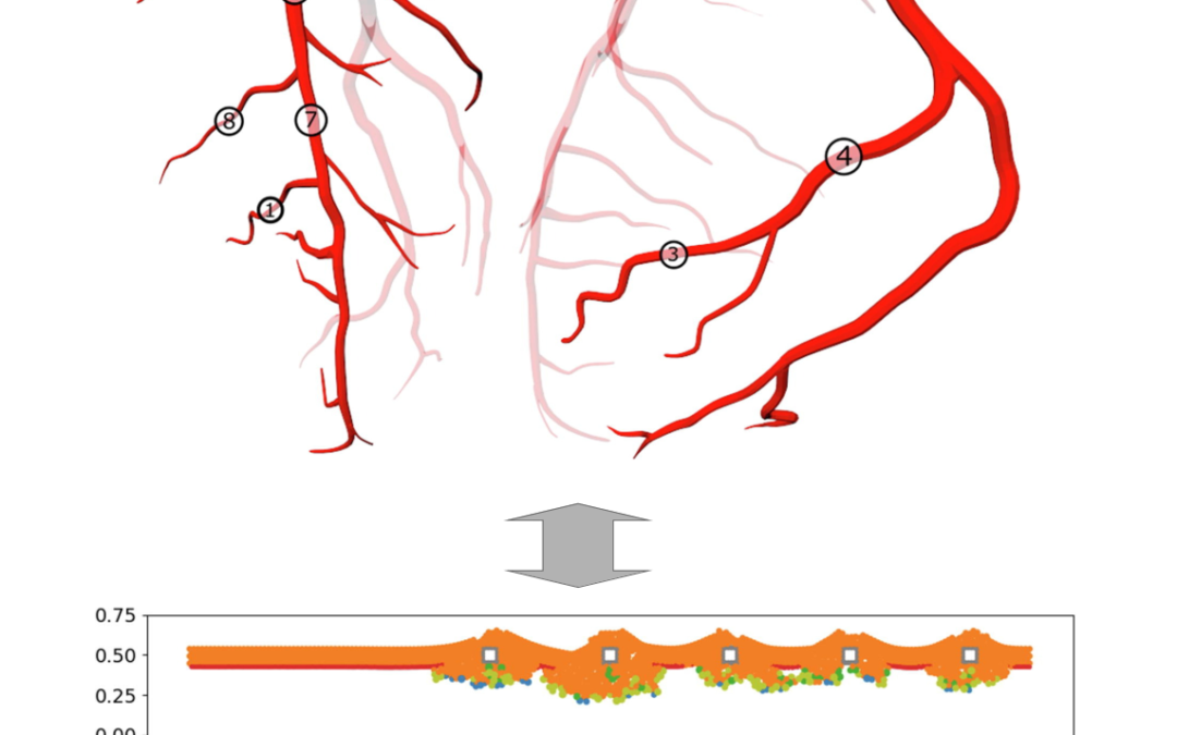 Effects of local coronary blood flow dynamics on the predictions of a model of in-stent restenosis